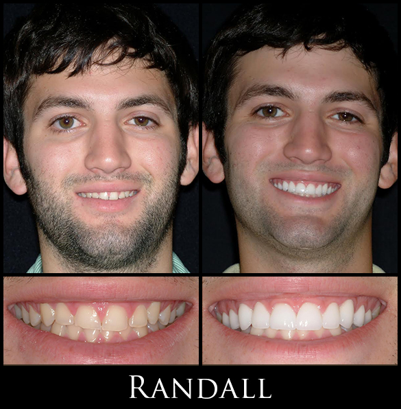 Gallery Randall