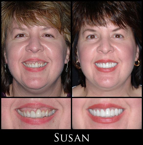 Gallery Susan