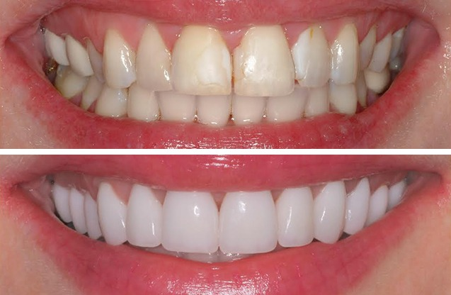 porcelain veneers Galliano Family Dentistry