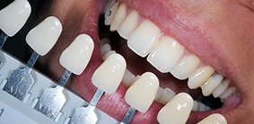 Galliano Dentistry Zoom Whitening