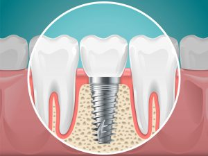 dental implants at Galliano Family Dentistry