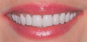 Galliano Dentistry Veneers