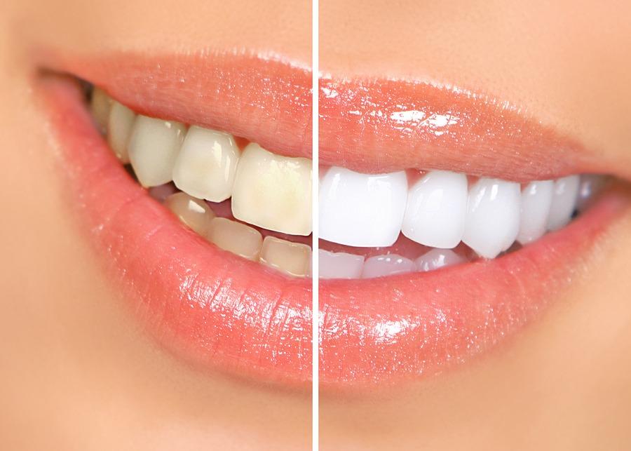 teeth whitening with Galliano