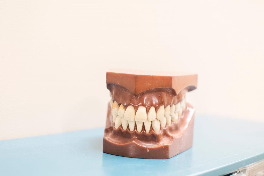 Gum Disease - Galliano Family Dentistry